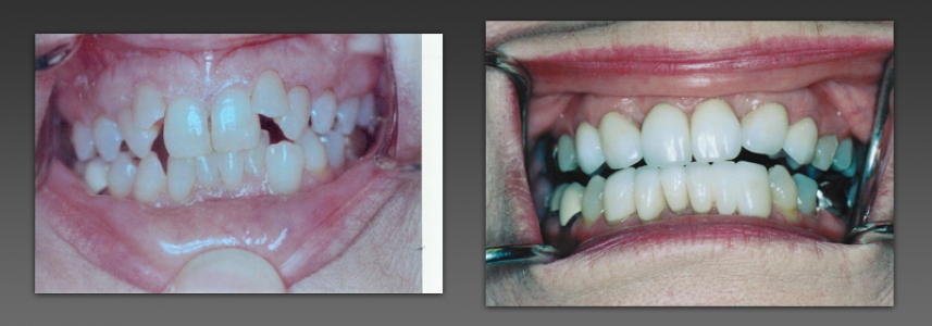 Extractions and Crowns