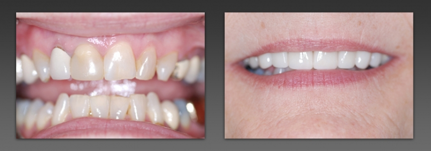 Combination of Crowns and Veneers