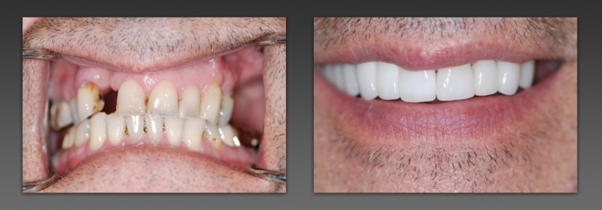 Combination of Bridge and Veneers